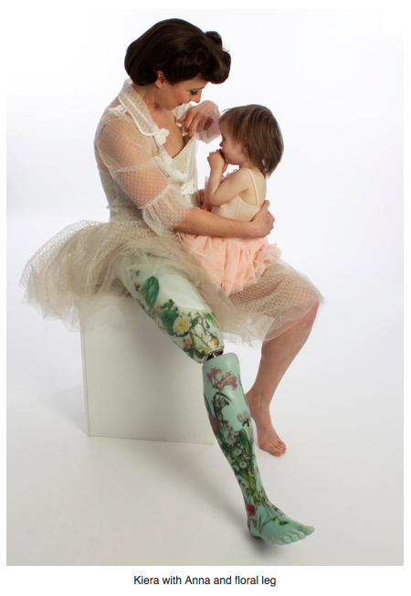 Kiera with her daughter and floral leg