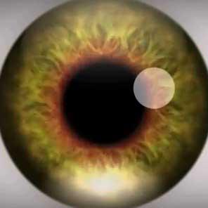 Iris of eye